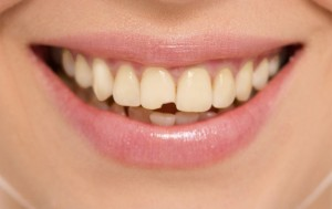 Teeth decay cure. Tooth whitening. Before and after.